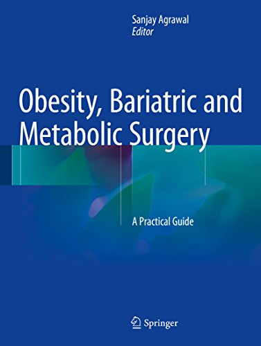 Obesity, Bariatric and Metabolic Surgery: A Practical Guide (English Edition)