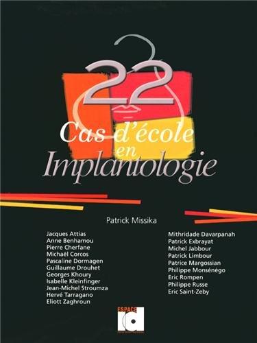 22 cas d'école en implantologie