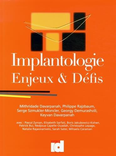 Implantologie : Enjeux & Dfis