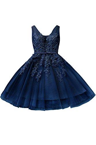 Damen Elegant Ärmellos Spitzen Partykleid mit Applique Kurz Rückenfrei Kurz Dunkelblau 34 -