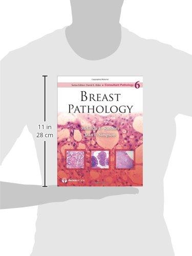 Breast Pathology (Consultant Pathology)