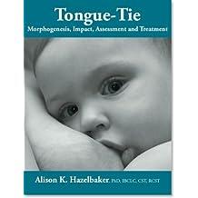 TONGUE TIE Morphogenesis, Impact, Assessment and Treatment.