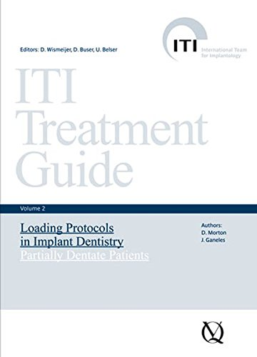 ITI Treatment Guide: Loading Protocols in Implant Dentistry - Partially Dentate Patients v. 2 (ITI Treatment Guides)