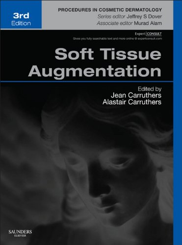 Soft Tissue Augmentation E-Book: Procedures in Cosmetic Dermatology Series (Expert Consult - Online and Print) (English Edition) - Clinical Peel