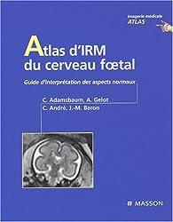 Atlas d'IRM du cerveau foetal. Guide d'interprétation des aspetcs normaux
