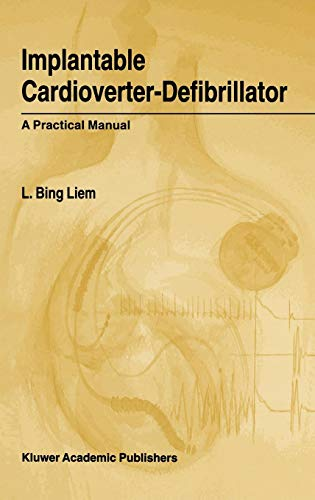 Implantable Cardioverter-Defibrillator: A Practical Manual -