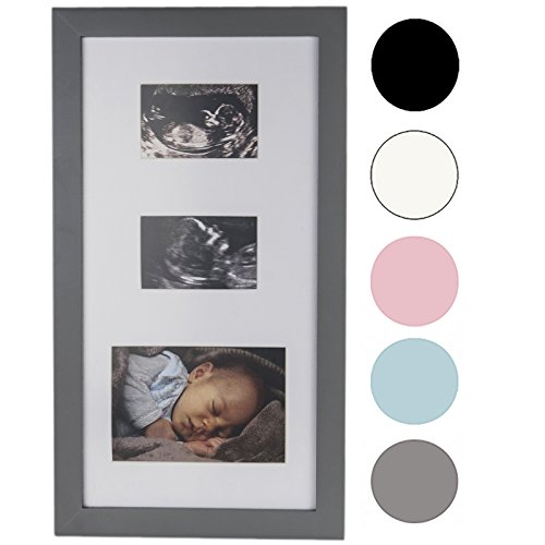 Descargar PDF Precious Prints Double Baby Ultrasound Scan & Photo ...