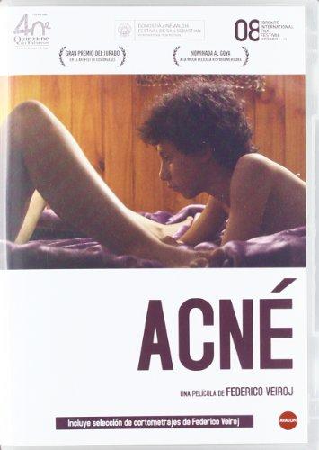 acne-import-dvd-2011-alejandro-tocar-yoel-bercovici-igal-label-gustavo