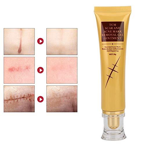 Gel zur Entfernung von Narben und Aknemarken, Narbengel, Hautreparaturcreme, Körperbehandlung, Akneflecken, elastische Gelmarkierungen, Hautreparatur, Gesicht, Akne, Fleckenbehandlung