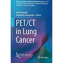 PET/CT in Lung Cancer (Clinicians' Guides to Radionuclide Hybrid Imaging)