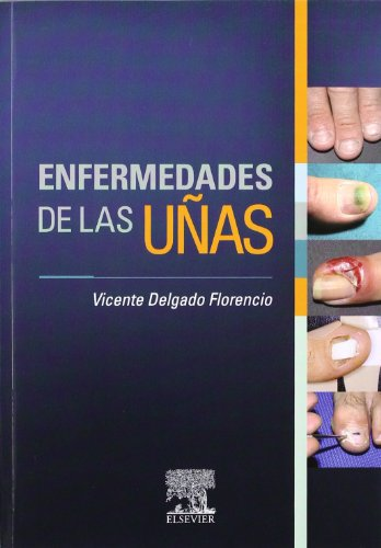 Enfermedades de las uñas por V. Delgado
