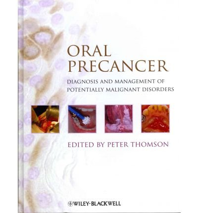 [(Oral Precancer: Diagnosis and Management of Potentially Malignant Disorders)] [Author: Peter Thomson] published on (May, 2012)