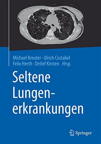 Seltene Lungenerkrankungen por Michael Kreuter epub