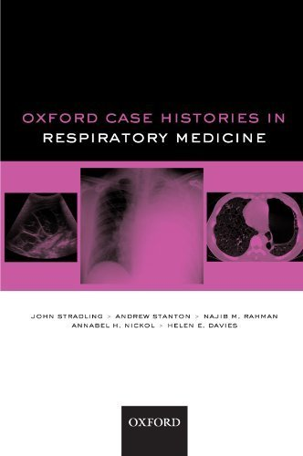Oxford Case Histories in Respiratory Medicine 1st edition by Stradling, John, Stanton, Andrew, Nickol, Annabel H., Davies (2010) Paperback