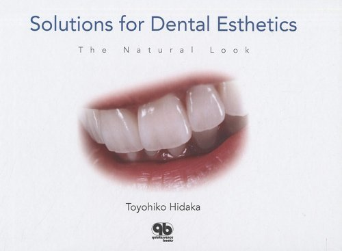 Solutions for Dental Esthetics: The Natural Look by Toyohiko Hidaka (2008-06-30)