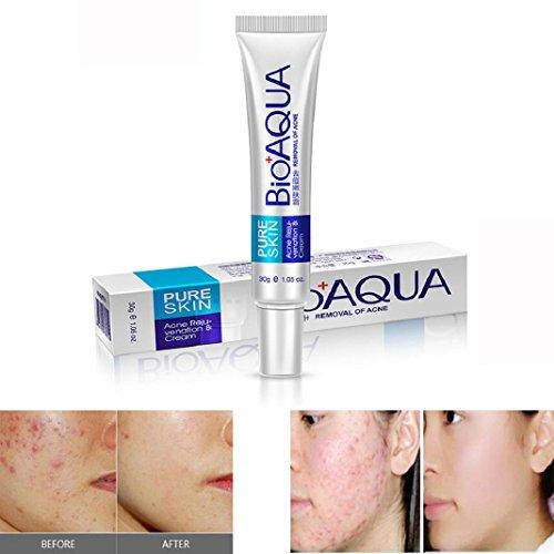 Gesicht Hautpflege Akne Creme Effektive Gesicht Hautpflege Removal Creme Akne Spots Narbe Verunstaltung Marks Behandlung