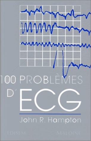 100 problèmes d'ECG