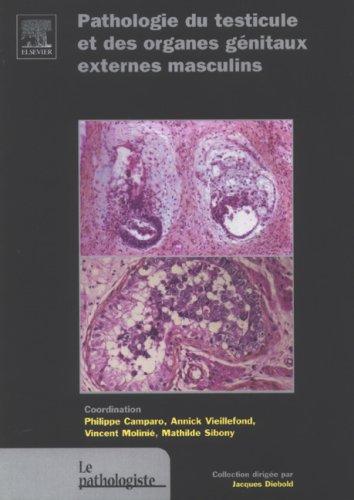 Pathologie du testicule et des organes génitaux externes masculins