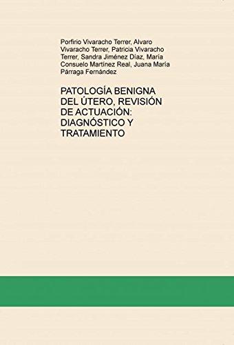 PATOLOGÍA BENIGNA DEL ÚTERO, REVISIÓN DE ACTUACIÓN: DIAGNÓSTICO Y TRATAMIENTO