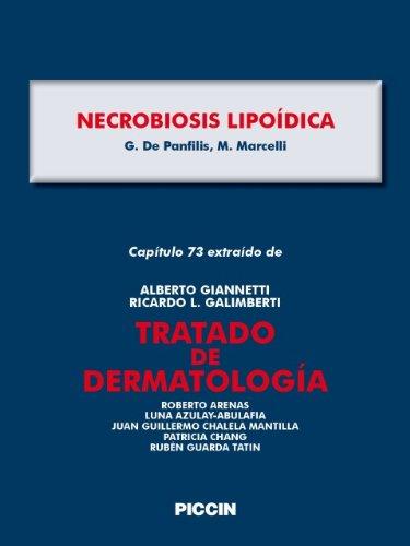 Capítulo 73 extraído de Tratado de Dermatología - NECROBIOSIS LIPOÍDICA por A.Giannetti