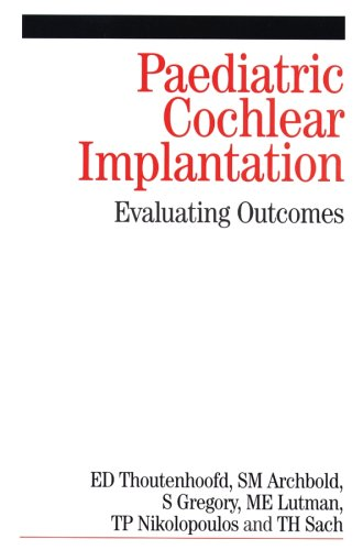 paediatric-cochlear-implantation-evaluating-outcomes