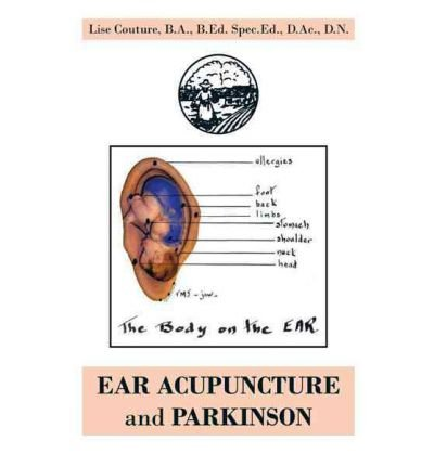 EAR ACUPUNCTURE and PARKINSON (Paperback) - Common