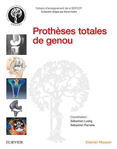 Prothèses totales de genou