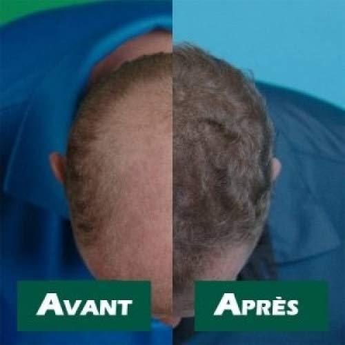 velform hair grow max  Velform Hair Grow Max - Crema che favorisce la ricrescita dei ...