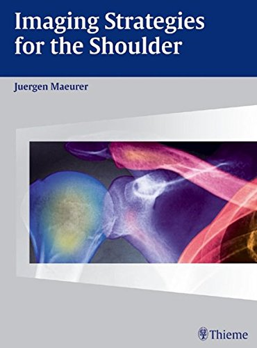 Imaging Strategies for the Shoulder: A Multimodality Manual