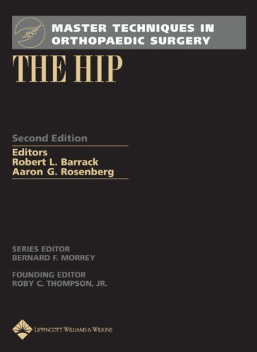 Master Techniques in Orthopaedic Surgery: The Hip (2005-12-19)