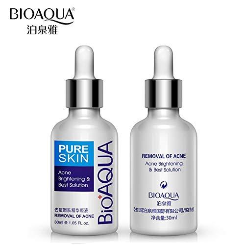 Tyro BIOAQUA Crème de soin du visage pour les taches d'acné et les cicatrices d'acné, soin de la peau, traitement de l'acné, blanchissant et hydratant l'huile essentielle
