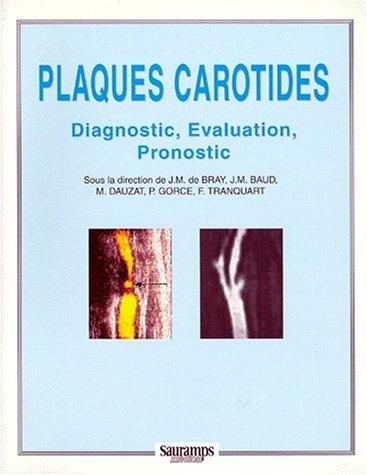 PLAQUES CAROTIDES. Diagnostic, Evaluation, Pronostic