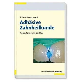 Adhäsive Zahnheilkunde: Wissenschaft und Praxis