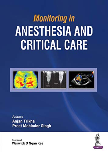 Monitoring in Anesthesia and Critical Care (English Edition)