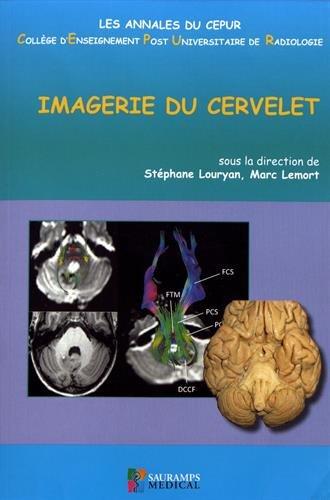 Imagerie du cervelet par Collectif