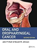 #4: Oral and Oropharyngeal Cancer