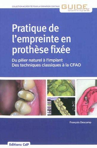 Pratique de l'empreinte en prothèse fixée: Du pilier naturel à l'implant - Des techniques classiques à la CFAO