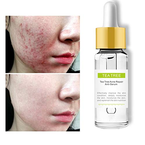 Ardorlove Tea Tree Repair Facial Serum Vibrant Serum Acne Scars Retractable Pores Acne Treatment