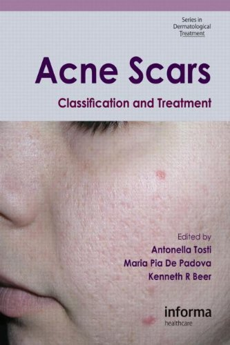 Acne Scars: Classification and Treatment (Series in Dermatological Treatment) (2009-12-18)
