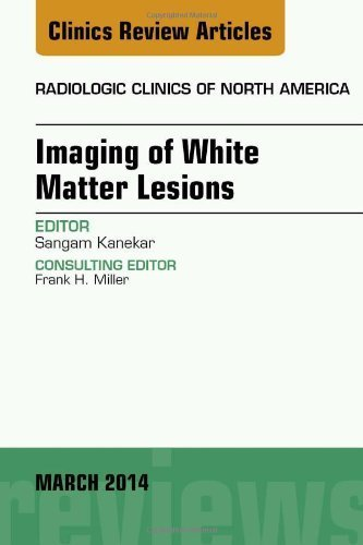 Imaging of White Matter, An Issue of Radiologic Clinics of North America, 1e (The Clinics: Radiology) 1st Edition by Kanekar, Sangam (2014) Hardcover