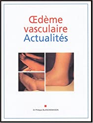 Oedème vasculaire Actualités