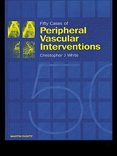 Fifty Cases Of Peripheral Vascular Interventions por Christopher J. White epub