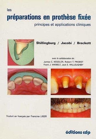 Les préparations en prothèse fixée : Principes et applications cliniques