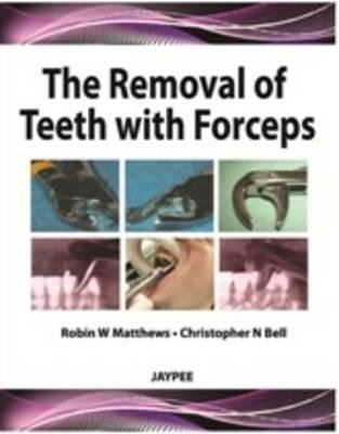 [(The Removal of Teeth with Forceps)] [Author: Robin W. Matthews] published on (October, 2012)