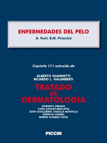 Capítulo 111 extraído de Tratado de Dermatología - ENFERMEDADES DEL PELO por A.Giannetti