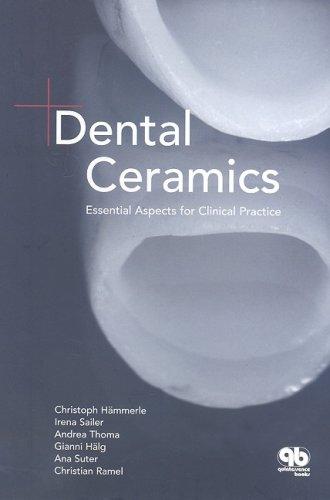 PDF] Download Dental Ceramics: Essential Facts for Cosmetics