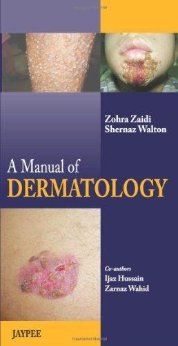 A Manual of Dermatology 1st Edition by Zaidi, Zohra (2013) Paperback