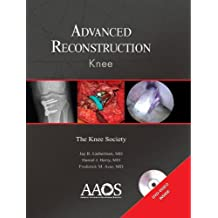 Advanced Reconstruction Knee