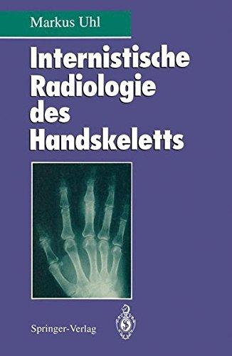 Internistische Radiologie des Handskeletts (German Edition) by Markus Uhl (1994-01-01)