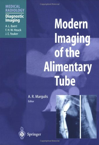 Modern Imaging of the Alimentary Tube (Medical Radiology) (2009-02-22)